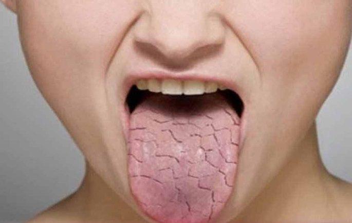 Ağız Kuruluğu Hangi Hastalıkların Habercisidir ?