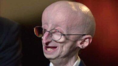 Photo of Erken Yaşlanma Nedir? Progeria Hastalığına Sebep Olan Etkenler ve Belirtiler