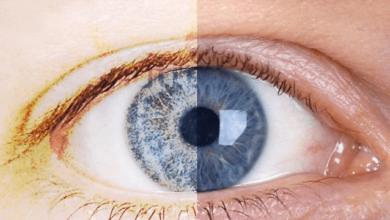 Photo of Göz Kuruluğu Nasıl Bir Hastalıktır ? Kuru Göz Hastalığı Nedir?