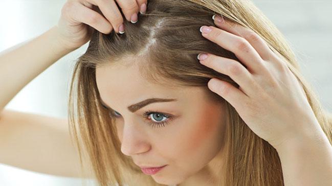 Çabuk Yağlanan Saçlar İçin Öneriler!