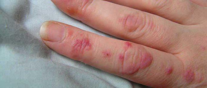 Lupus (SLE) Hastalığı Nedir?