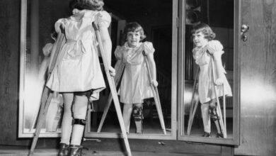 Photo of Çocuk Felci Nedir? Bulaşma Ve Korunma Yolları