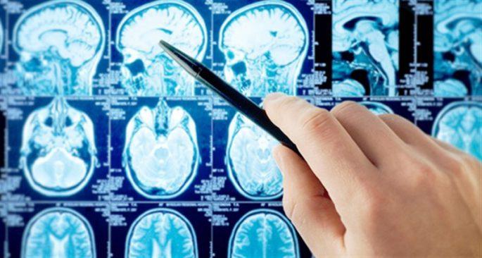 ALS Hastalığı Nedir? Belirtileri Neler ve Kimlerde Görülür?