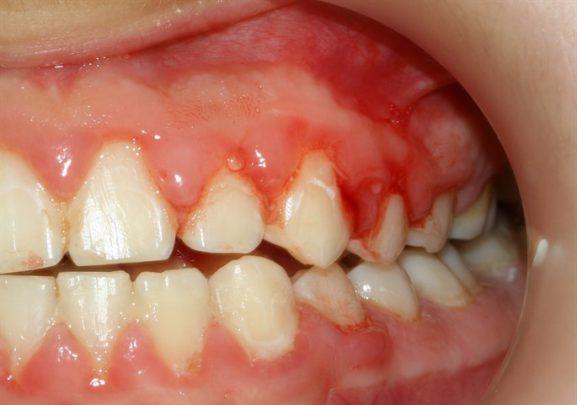 Diş Eti Kanaması Nedir?
