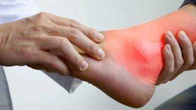 Photo of Gut Hastalığı Nedir? Belirtileri Nelerdir?