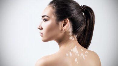 Photo of Vitiligo Nedir? Belirtileri Nelerdir?