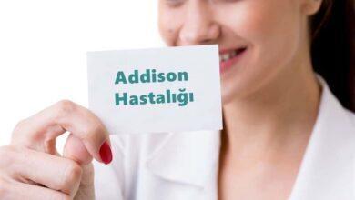 Photo of Addison Hastalığı Nedir? Belirtileri Nelerdir?