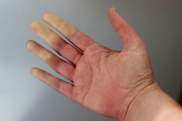 beyaz parmak sendromu Beyaz Parmak Sendromu Nedir?