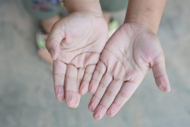 raynaud sendormu Beyaz Parmak Sendromu Nedir?