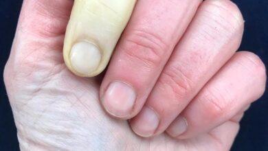 beyaz parmak sendromu