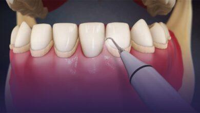 Photo of Diş taşı Nedir? Nasıl Oluşur?