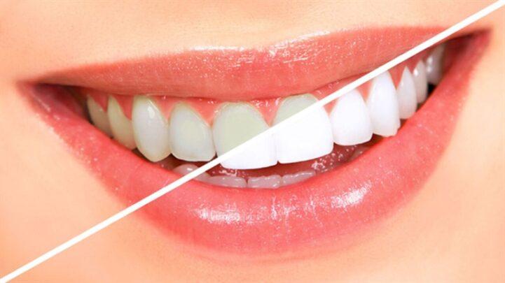 En İyi Sonuç Veren Diş Macunu Çeşitleri