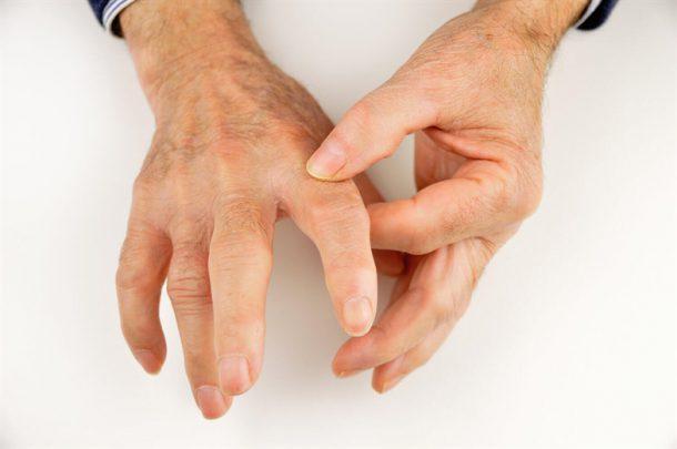 Skleroderma Nedir? Belirtileri Nelerdir?