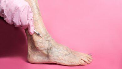 Photo of Skleroterapi Nedir? Ne İşe Yarar?