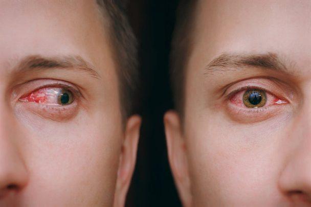 Konjonktivit (Pembe Göz) Nedir? Nedenleri Nelerdir?