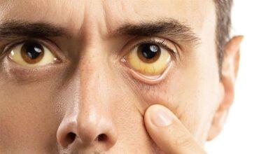 Photo of Sarı Humma Virüsü Nedir? Belirtileri Nelerdir?