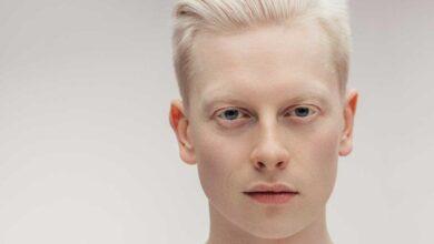 Photo of Albino (Albinizm) Nedir? Nedenleri Nelerdir?