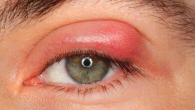 Photo of Göz Kapağı İltihabı (Blefarit) Nedir? Nedenleri Nelerdir?