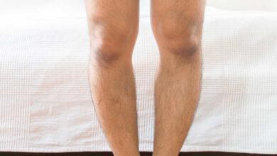 Photo of Çarpık Bacak Nedir? Nasıl Tedavi Edilir?