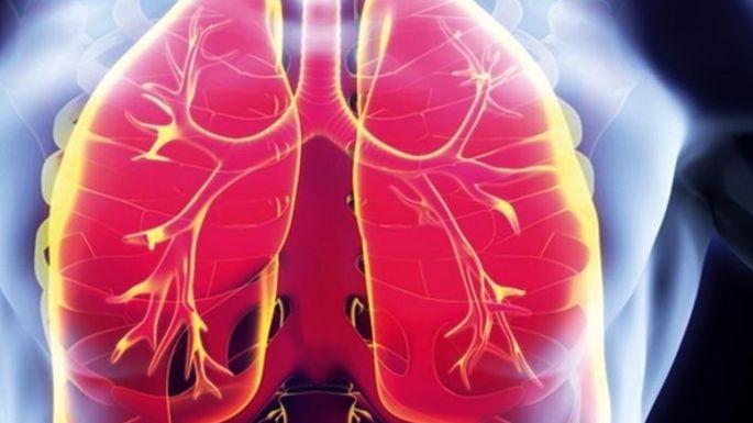 Akciğer Sönmesi Nedir? Belirtileri ve Tedavisi Nelerdir?