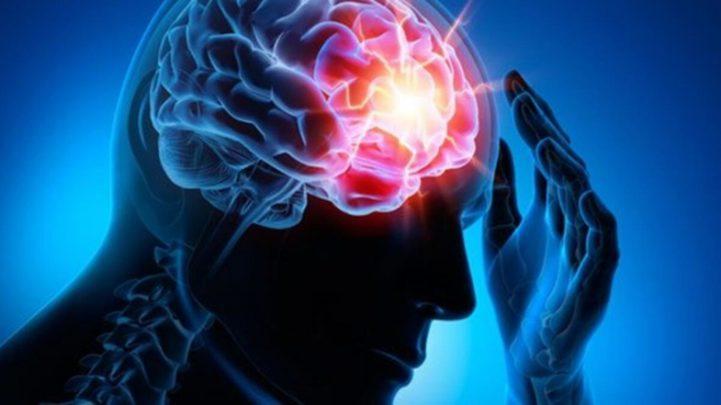 epilepsi Epilepsi (Sara) Nedir? Belirtileri ve Nedenleri Nelerdir?