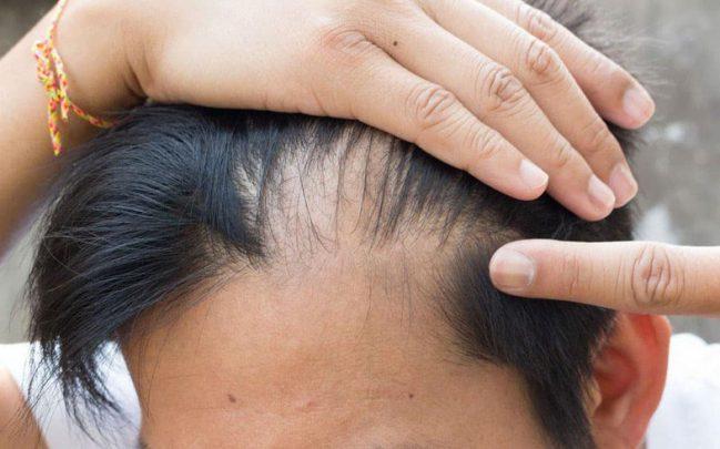 Saç Dökülmesine Ne İyi Gelir Saç Dökülmesine Ne İyi Gelir?